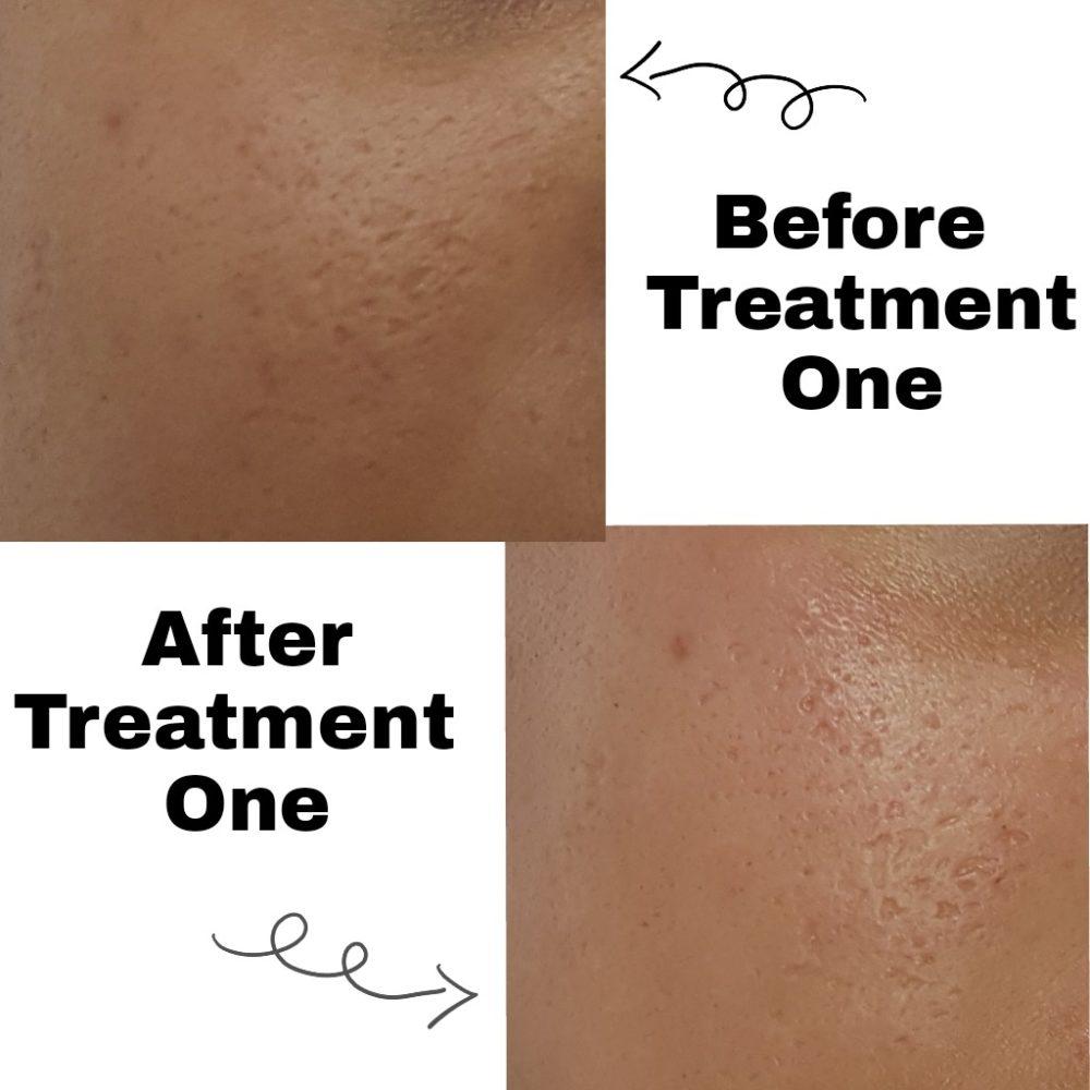 dermapen treatment acne scarring